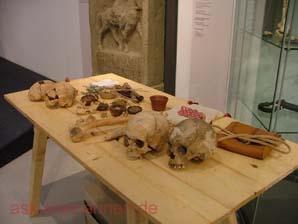 Knochen mit Verletzungsbefunden